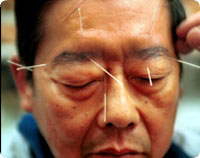 brain_needle2.jpg
