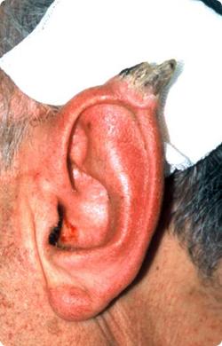 ear_horn.jpg