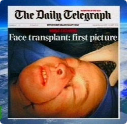face_transplant_french4.jpg