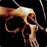 http://x51.org/x/images2005/lobotomy1.jpg