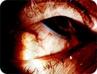 parasite_eye.jpg