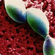toxoplasma.jpg